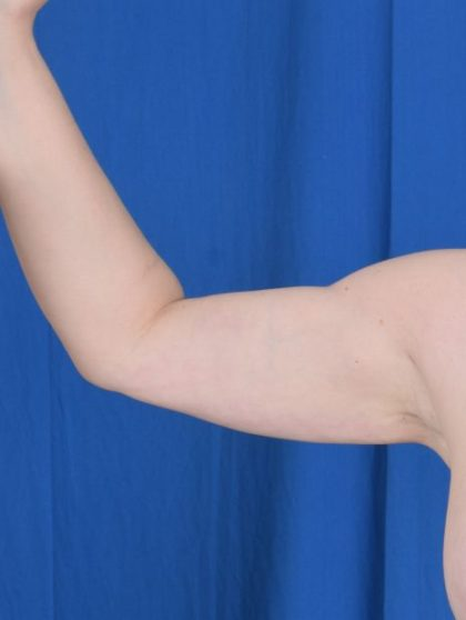 Arms Liposuction Before & After Patient #950