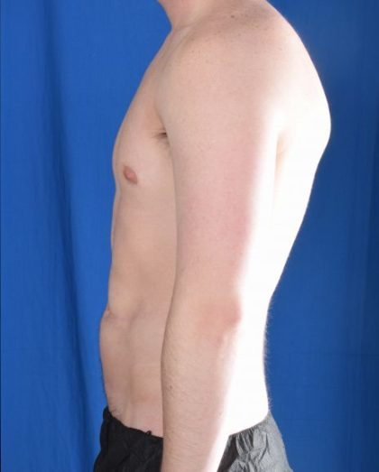 Torso Liposuction Before & After Patient #983