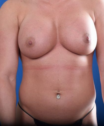 Torso Liposuction Before & After Patient #953