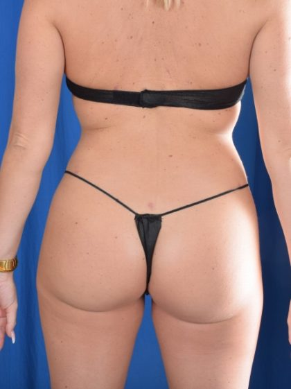 Fat Transfer to Buttocks Before & After Patient #1053