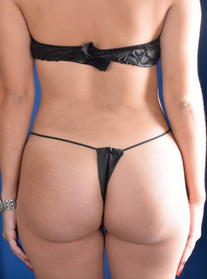 Fat Transfer to Buttocks Before & After Patient #1063