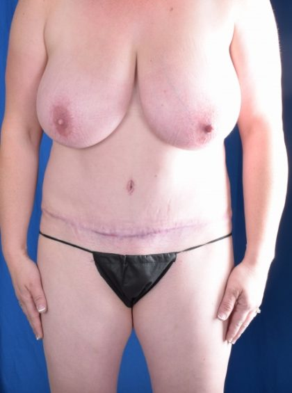 Tummy Tuck Before & After Patient #1089