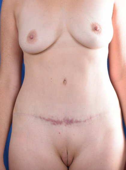Tummy Tuck Before & After Patient #1160