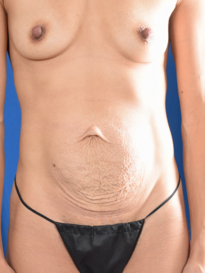 Tummy Tuck Before & After Patient #1167