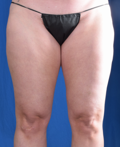 Legs Liposuction Before & After Patient #1334