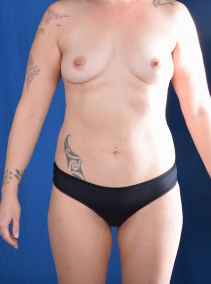 Torso Liposuction Before & After Patient #1420