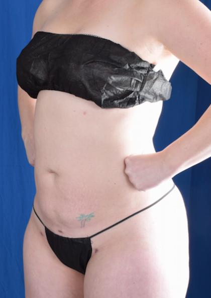 Torso Liposuction Before & After Patient #1427