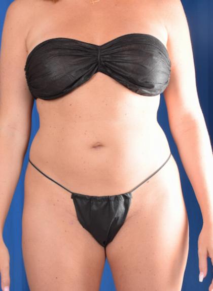 Torso Liposuction Before & After Patient #1436