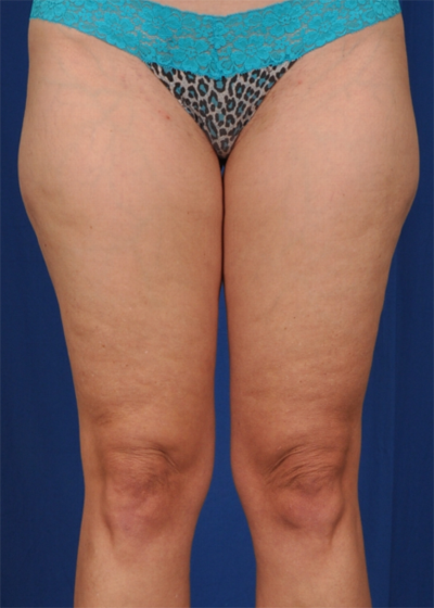 Legs Liposuction Before & After Patient #1487