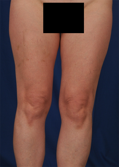 Legs Liposuction Before & After Patient #1496