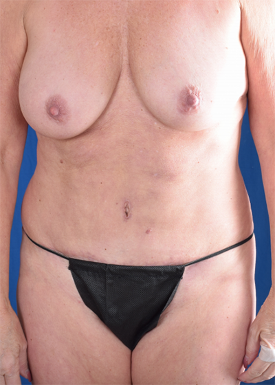 Tummy Tuck Before & After Patient #1513