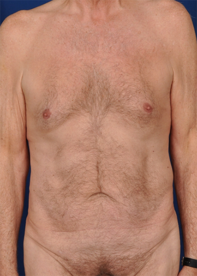 Tummy Tuck Before & After Patient #1532
