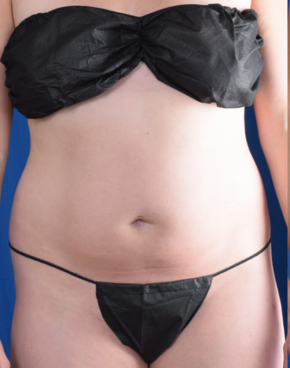 Torso Liposuction Before & After Patient #2016