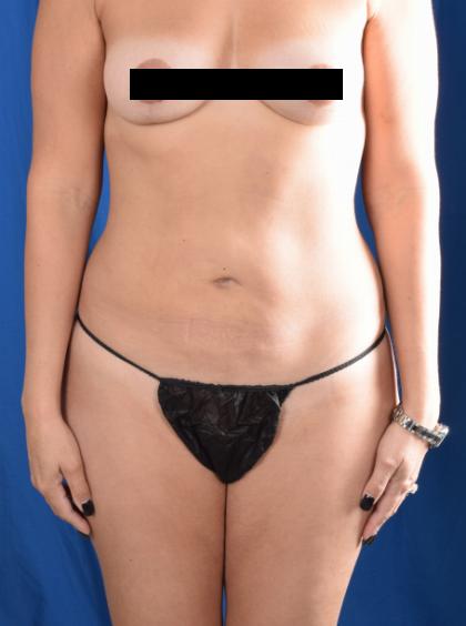 Torso Liposuction Before & After Patient #2034