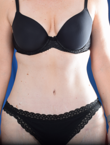 Tummy Tuck Before & After Patient #2048
