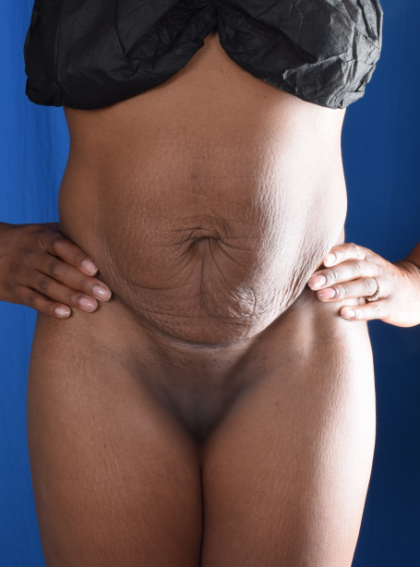 Tummy Tuck Before & After Patient #2057
