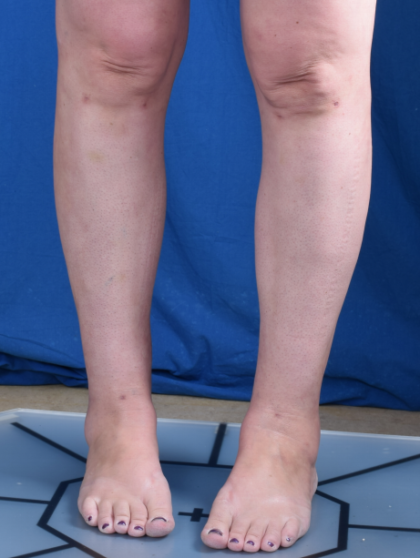Legs Liposuction Before & After Patient #2000