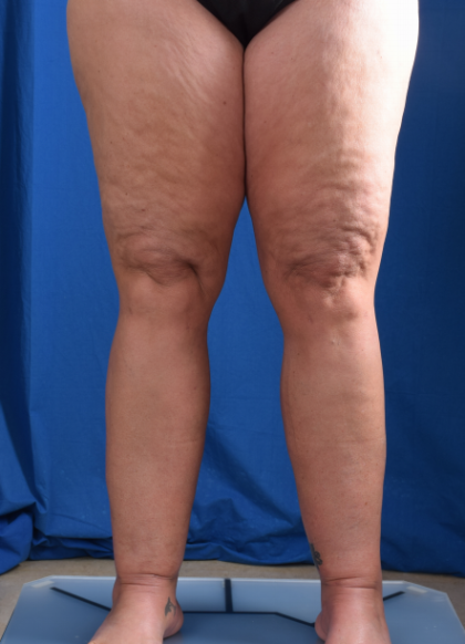 Legs Liposuction Before & After Patient #1992