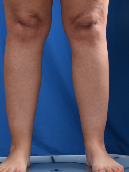 Legs Liposuction Before & After Patient #2009
