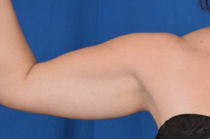 Arms Liposuction Before & After Patient #1969