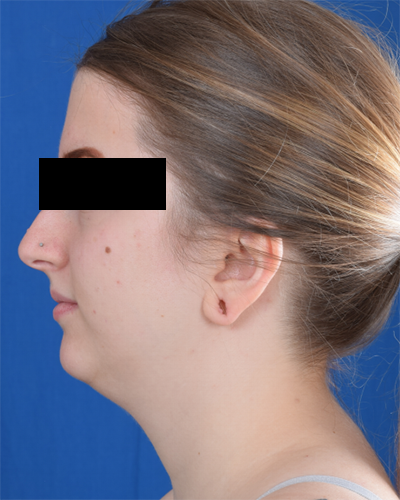 Chin Liposuction Before & After Patient #2077