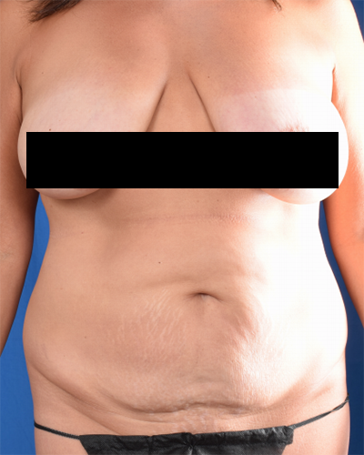 Tummy Tuck Before & After Patient #2093