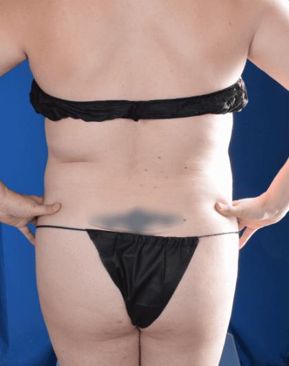 Torso Liposuction Before & After Patient #2284