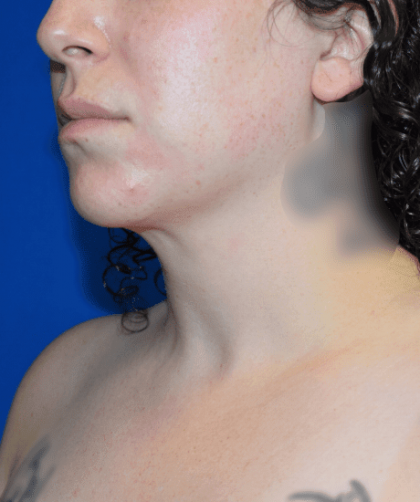 Chin Liposuction Before & After Patient #2245
