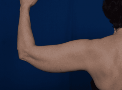 Arms Liposuction Before & After Patient #2240