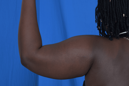 Arms Liposuction Before & After Patient #2235